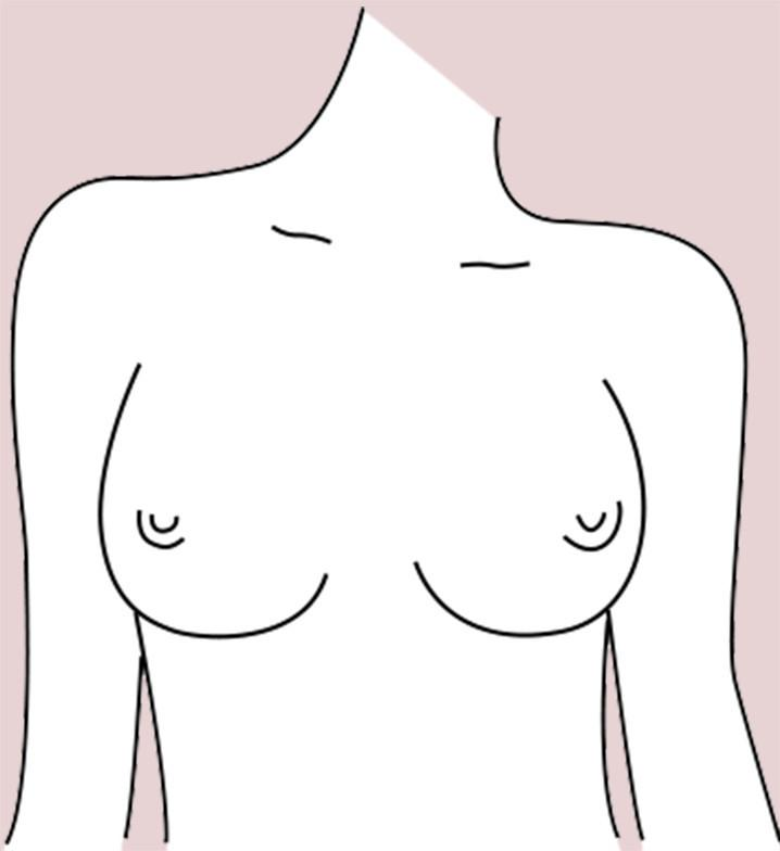 Side Set breast shape