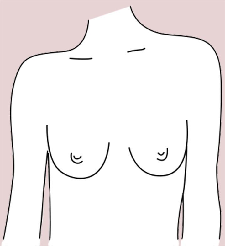 Slender breast shape