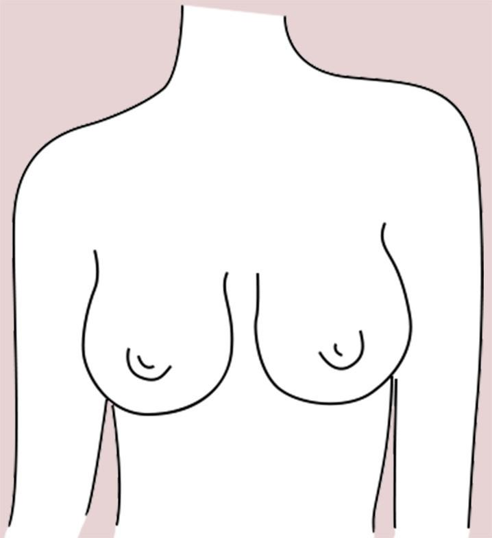 Bell-Shaped breast shape