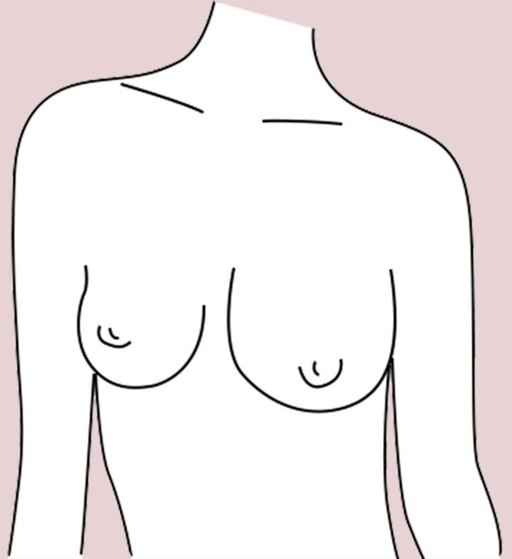 Asymmetrical breast shape
